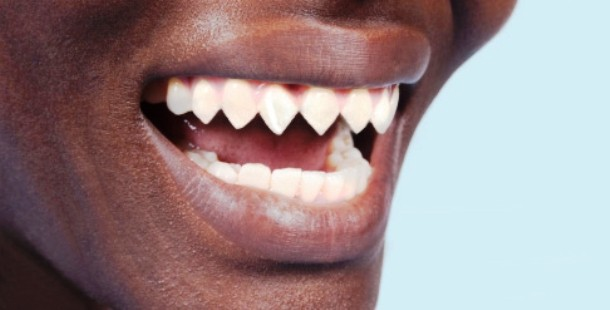 blog.bodycandy.com-Tooth-Filin-610x310