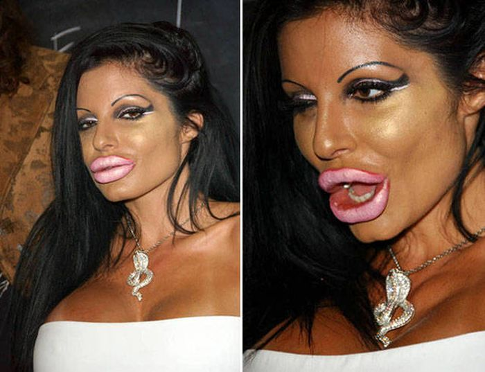 plastic_surgery_fails_10